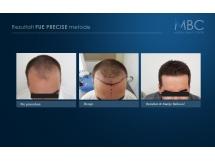 Transplantacija kose, dr Marija Balković
