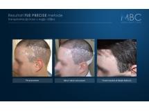 Transplantacija kose u regiju oziljaka