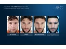 Transplantacija kose u regiju obrva i brade