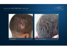 Prikrivanje oziljaka transplantacijom kose fue precise metodom dr Marija Balkovic